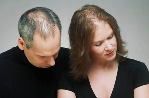 Herbal Supplements for Hair Loss